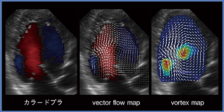 図1 VFMで観察可能なvector flow mapとvortex map