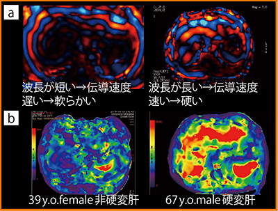 図1 MR elastography