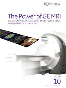 The Power of GE MRI