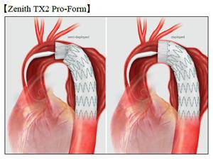 クックジャパン,改良型 胸部大動脈瘤用ステントグラフト「Zenith® TX2® Pro-Form TAA エンドバスキュラーグラフト」販売開始~日本初のステントグラフト発売から5年間で10,000症例 大動脈瘤治療のパイオニアとしてさらなる貢献を目指す~