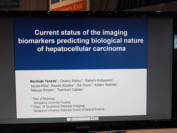 GI192-ED-X Current Status of the Imaging Biomarkers Predicting Biological Nature of Hepatocellular Carcinoma 米田憲秀氏(金沢大学)ほか