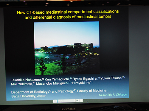 CH134-ED-X New CT-Based Mediastinal Compartment Classifications and Differential Diagnosis of Mediastinal Tumors 中園貴彦氏(佐賀大学)ほか