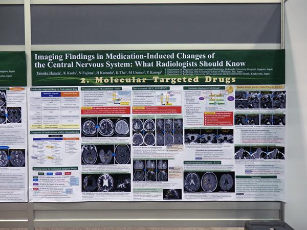Imaging Findings in Medication-Induced Changes of the Central Nervous System: What Radiologists Should Know 原田太以佑氏(北海道大学)ほか