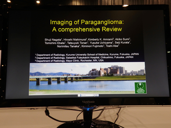 Imaging of Paraganglioma in Various Organs: A Comprehensive Review 長田周治氏(久留米大学)ほか