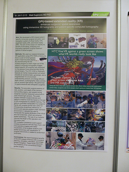 ポスターセッション:杉本真樹氏(国際医療福祉大学)「GPU-Based Extended Reality(XR)Enhances Surgeons' Spatial Awareness in Surgical Theater Using Immersive 3D Holograms and Patient-Specific Computed Tomography」