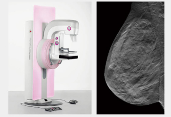 mammomat inspiration tomosynthesis Digital 3d mammography machine mammomat inspiration with prime technology is a unique all-in-one screening system.
