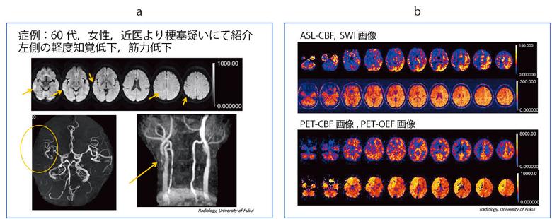 図9 症例4:一過性脳虚血発作 ...