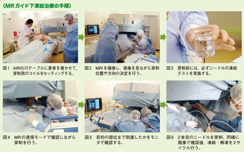 MRガイド下凍結治療の臨床応用がスタート「CryoHit」とオープンMRI ...
