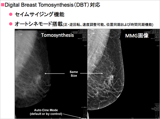 Digital Breast Tomosynthesis(DBT)対応