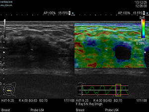 Real-time Tissue  Elastography(RTE)