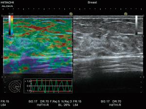 Real-time Tissue Elastography