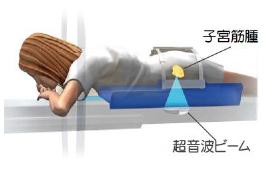 GEヘルスケア,MRガイド下集束超音波治療器の新製品「ExAblate2100」を日本市場へ投入〜インサイテック社との共同開発,子宮筋腫の低侵襲治療法,治療時間を大幅に短縮した日帰り治療が可能に〜