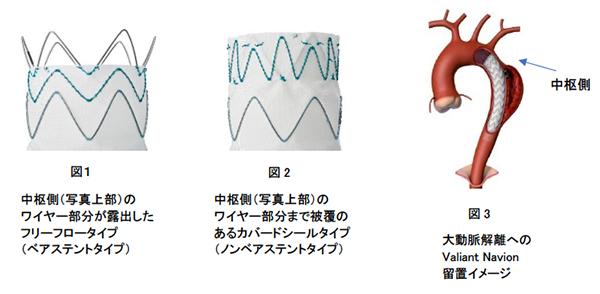 ガイドライン 大動脈 解離