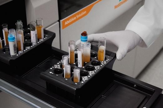 検査 キット 抗体 用 採血