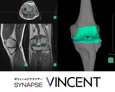 3D解析ワークステーション SYNAPSE VINCENT Ver5.0