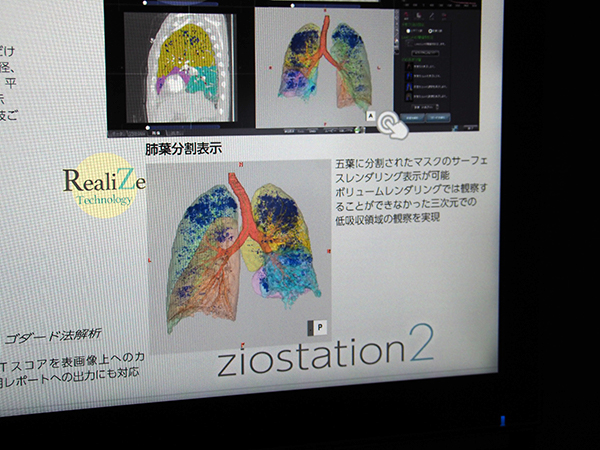 RealiZeで五葉の分割を自動で高精度に行う。