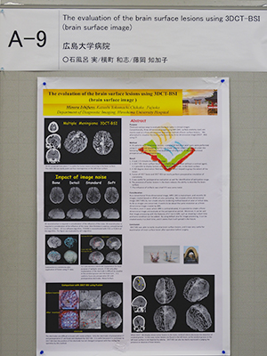 Certificate of Merit The evaluation of the brain surface lesions using 3DCT-BSI(brain surface image) 石風呂 実 氏(広島大学病院)ほか